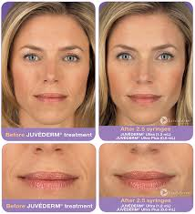 juvederm-voluma-xc-photo-2
