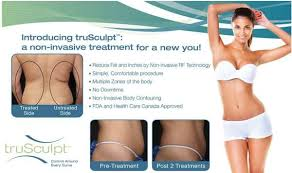 trusculpt-results-photo-3b