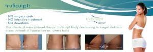 trusculpt-results-photo 1